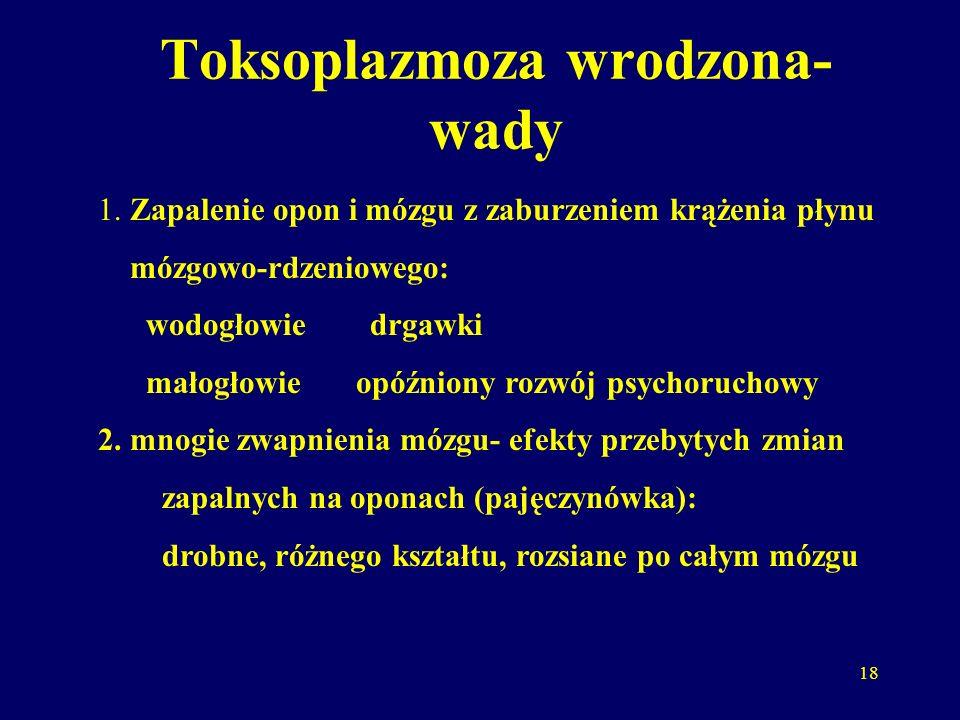 18 Toksoplazmoza wrodzona- wady 1.