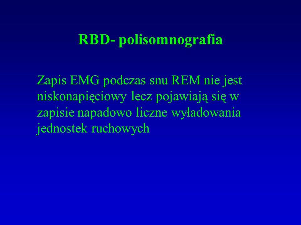 RBD- polisomnografia Zapis EMG podczas snu REM nie jest niskonapięciowy lecz pojawiają się w zapisie napadowo liczne wyładowania jednostek ruchowych