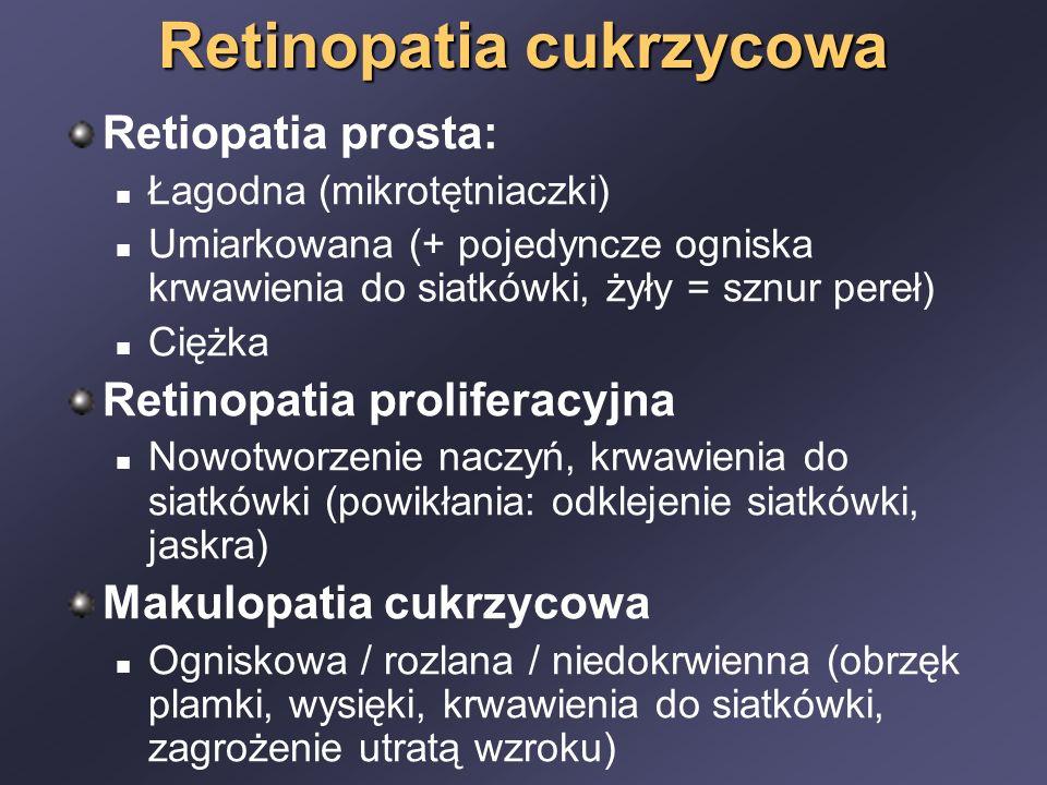 Retinopatia cukrzycowa Retiopatia prosta: Łagodna (mikrotętniaczki) Umiarkowana (+ pojedyncze ogniska krwawienia do siatkówki, żyły = sznur pereł) Ciężka Retinopatia proliferacyjna Nowotworzenie naczyń, krwawienia do siatkówki (powikłania: odklejenie siatkówki, jaskra) Makulopatia cukrzycowa Ogniskowa / rozlana / niedokrwienna (obrzęk plamki, wysięki, krwawienia do siatkówki, zagrożenie utratą wzroku)