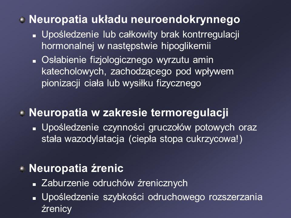 Neuropatia układu neuroendokrynnego Upośledzenie lub całkowity brak kontrregulacji hormonalnej w następstwie hipoglikemii Osłabienie fizjologicznego wyrzutu amin katecholowych, zachodzącego pod wpływem pionizacji ciała lub wysiłku fizycznego Neuropatia w zakresie termoregulacji Upośledzenie czynności gruczołów potowych oraz stała wazodylatacja (ciepła stopa cukrzycowa!) Neuropatia źrenic Zaburzenie odruchów źrenicznych Upośledzenie szybkości odruchowego rozszerzania źrenicy