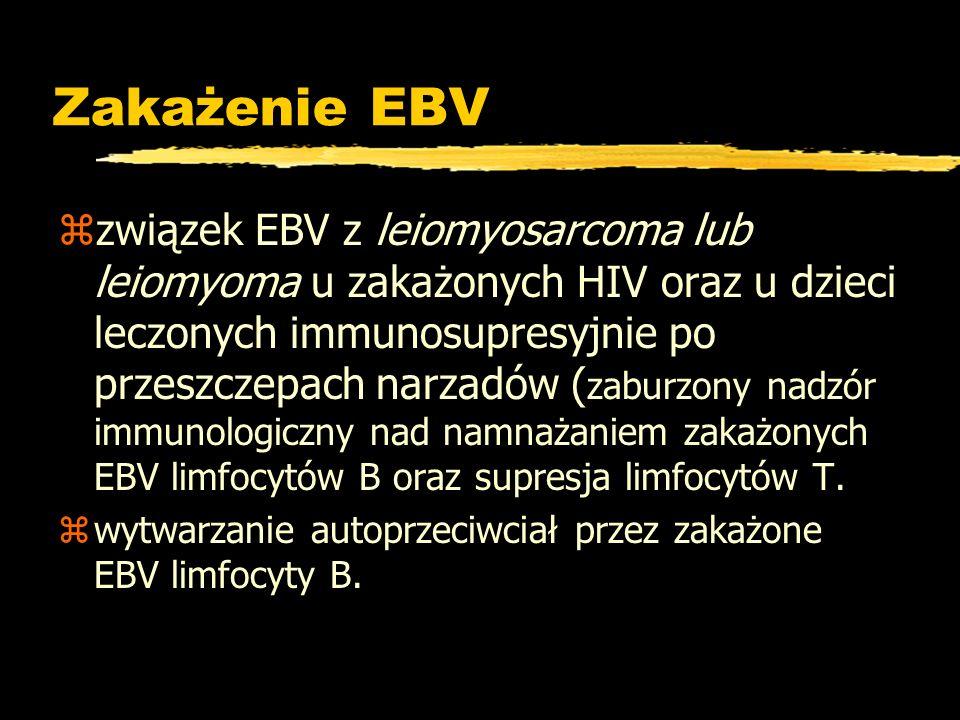 Zakażenie EBV zzwiązek EBV z leiomyosarcoma lub leiomyoma u zakażonych HIV oraz u dzieci leczonych immunosupresyjnie po przeszczepach narzadów ( zabur