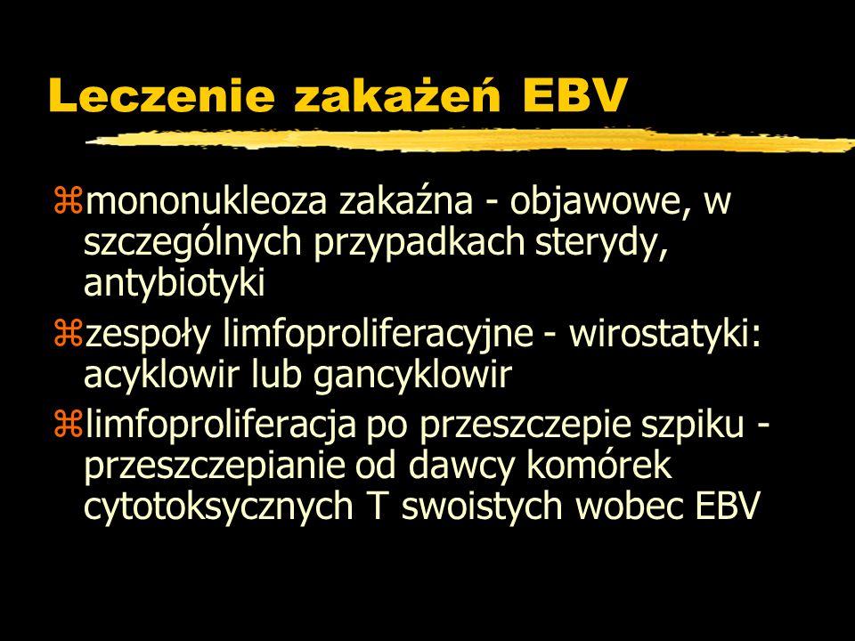 Leczenie zakażeń EBV zmononukleoza zakaźna - objawowe, w szczególnych przypadkach sterydy, antybiotyki zzespoły limfoproliferacyjne - wirostatyki: acy