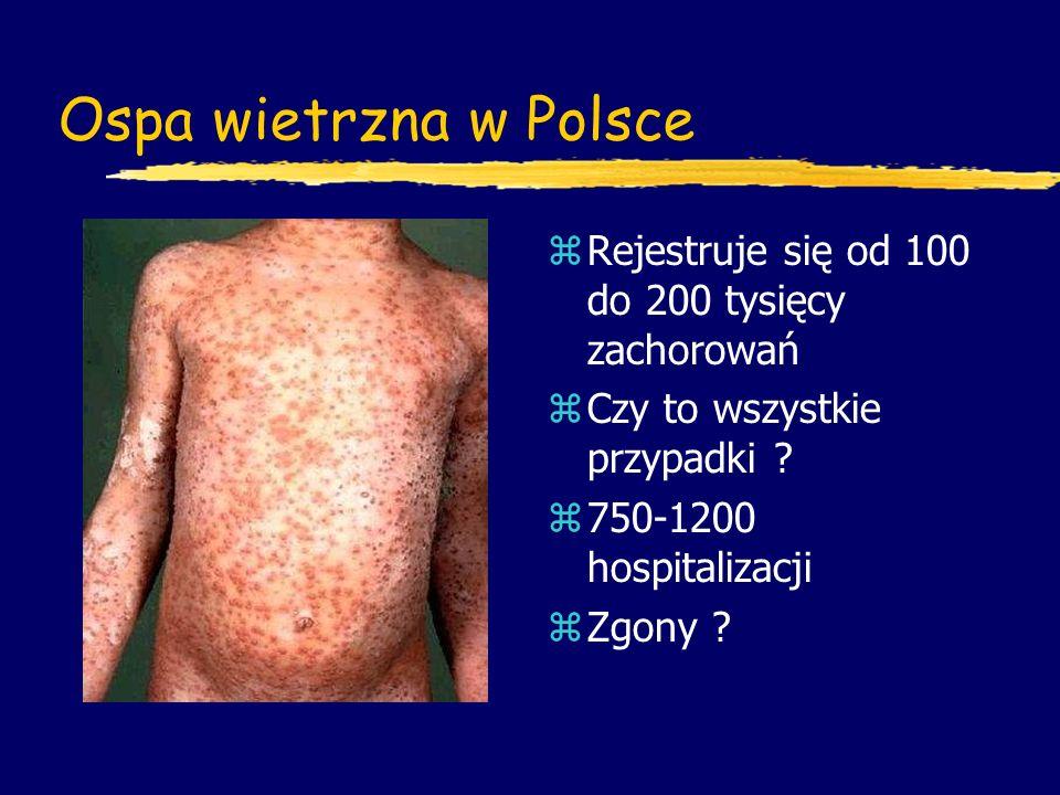 Ospa wietrzna w Polsce z Rejestruje się od 100 do 200 tysięcy zachorowań z Czy to wszystkie przypadki ? z 750-1200 hospitalizacji z Zgony ?