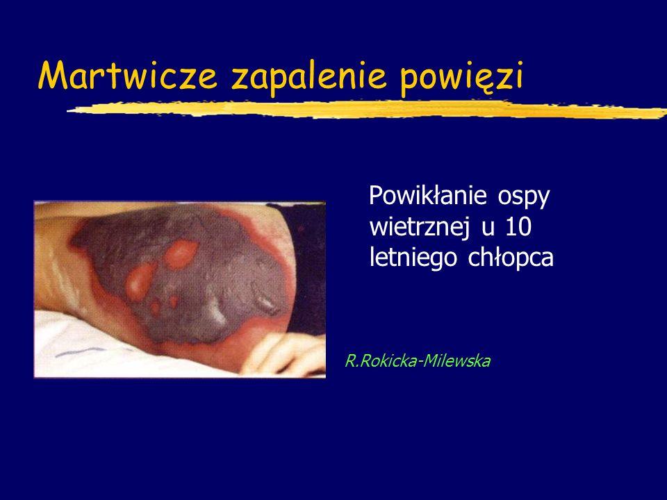 Martwicze zapalenie powięzi Powikłanie ospy wietrznej u 10 letniego chłopca R.Rokicka-Milewska