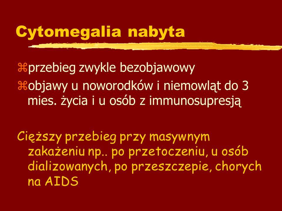 Cytomegalia nabyta zprzebieg zwykle bezobjawowy zobjawy u noworodków i niemowląt do 3 mies. życia i u osób z immunosupresją Cięższy przebieg przy masy