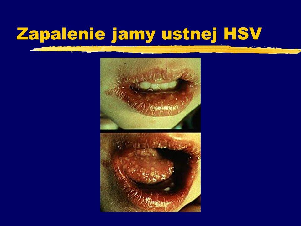 Rumień nagły - gorączka trzydniowa zchorują dzieci po 8 mż i w 2 roku życia OBJAWY zgorączka > 39°C przez 2 -5 dni zdrażliwość, niepokój, drgawki zwysypka po spadku gorączki zw okresie gorączki leukocytoza z przesunięciem w lewo zleukopenia limfocytarna ( nawet do 8 tygodni ) zleczenie objawowe