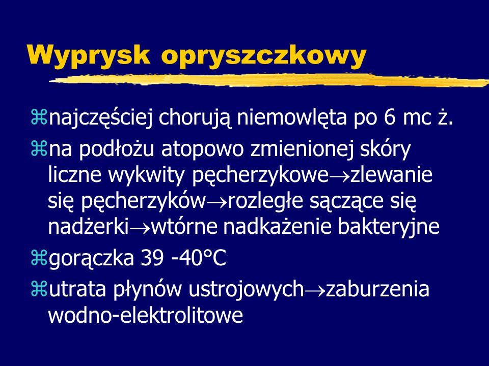 Zakażenia wirusem EBV Trochę historii...z1964 r.