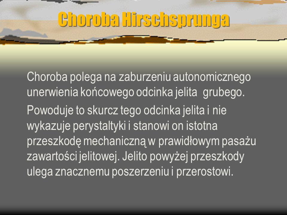 Choroba Hirschsprunga Choroba polega na zaburzeniu autonomicznego unerwienia końcowego odcinka jelita grubego. Powoduje to skurcz tego odcinka jelita