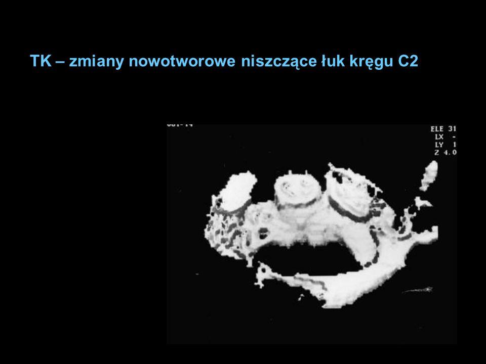 TK – zmiany nowotworowe niszczące łuk kręgu C2
