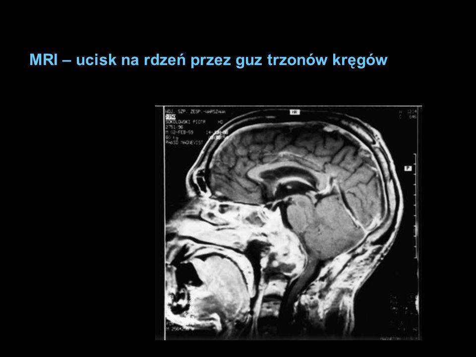 MRI – ucisk na rdzeń przez guz trzonów kręgów