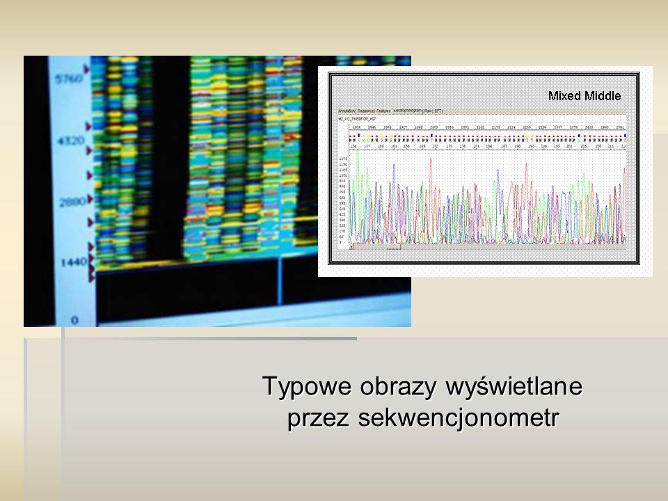 Typowe obrazy wyświetlane przez sekwencjonometr