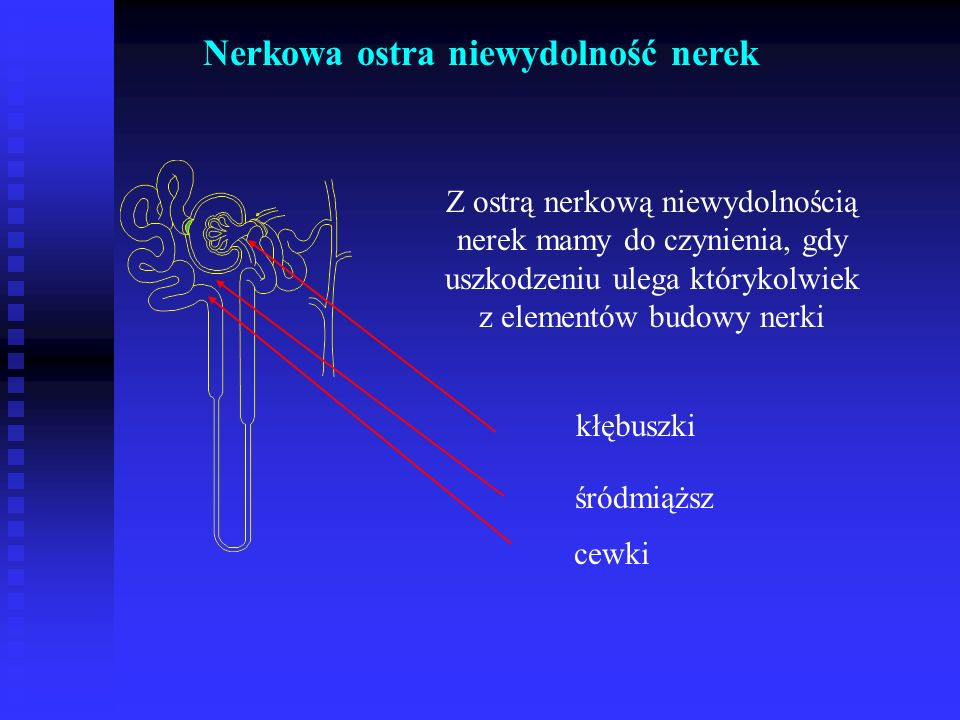 Nerkowa ostra niewydolność nerek Z ostrą nerkową niewydolnością nerek mamy do czynienia, gdy uszkodzeniu ulega którykolwiek z elementów budowy nerki kłębuszki cewki śródmiąższ