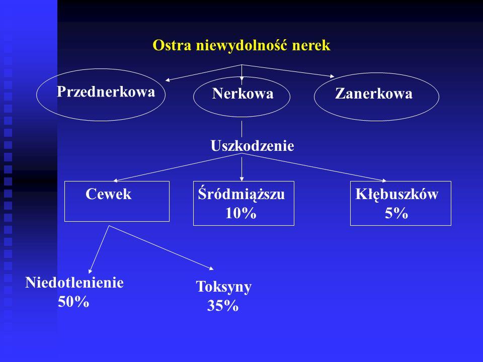Ostra niewydolność nerek Przednerkowa Nerkowa Zanerkowa CewekŚródmiąższu 10% Kłębuszków 5% Niedotlenienie 50% Uszkodzenie Toksyny 35%