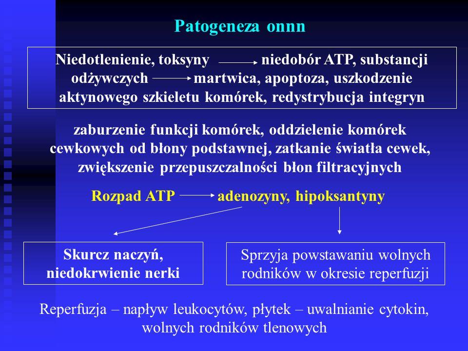 Patogeneza onnn Niedotlenienie, toksyny niedobór ATP, substancji odżywczych martwica, apoptoza, uszkodzenie aktynowego szkieletu komórek, redystrybucja integryn zaburzenie funkcji komórek, oddzielenie komórek cewkowych od błony podstawnej, zatkanie światła cewek, zwiększenie przepuszczalności błon filtracyjnych Rozpad ATP adenozyny, hipoksantyny Skurcz naczyń, niedokrwienie nerki Sprzyja powstawaniu wolnych rodników w okresie reperfuzji Reperfuzja – napływ leukocytów, płytek – uwalnianie cytokin, wolnych rodników tlenowych