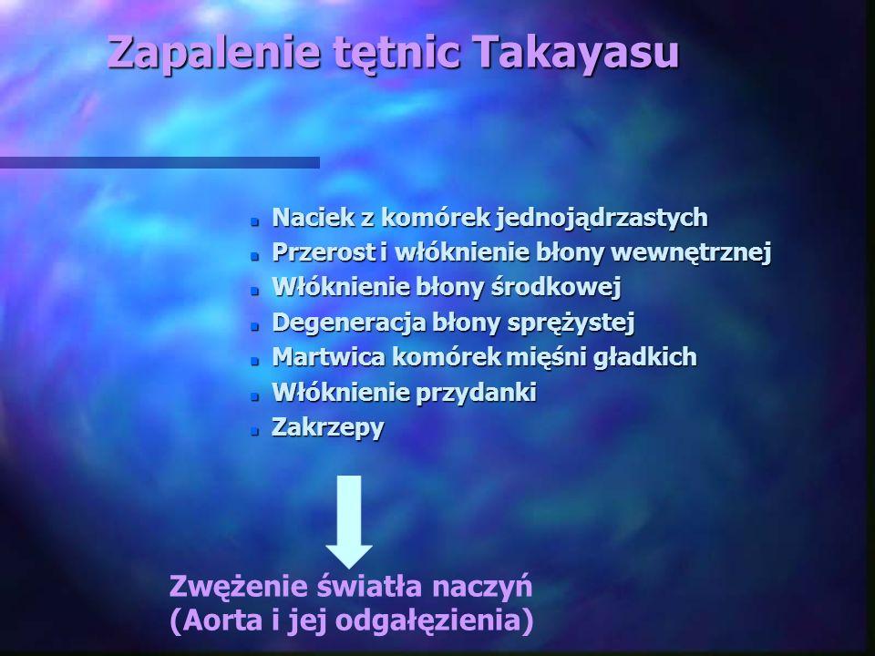Zapalenie tętnic Takayasu n Naciek z komórek jednojądrzastych n Przerost i włóknienie błony wewnętrznej n Włóknienie błony środkowej n Degeneracja bło