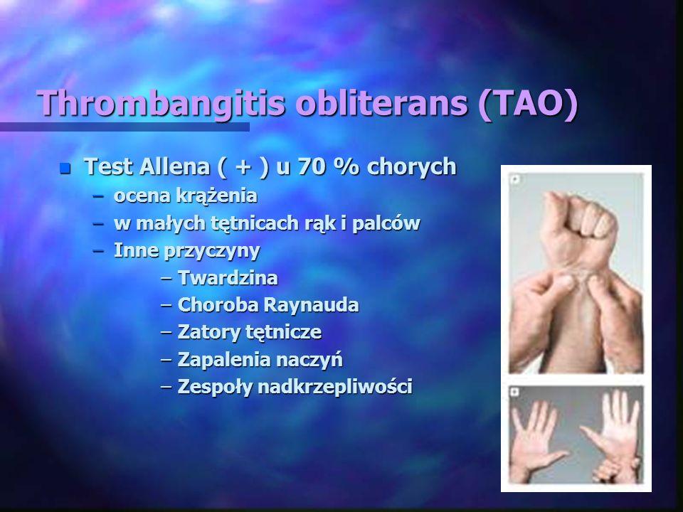 Thrombangitis obliterans (TAO) n Test Allena ( + ) u 70 % chorych –ocena krążenia –w małych tętnicach rąk i palców –Inne przyczyny –Twardzina –Choroba