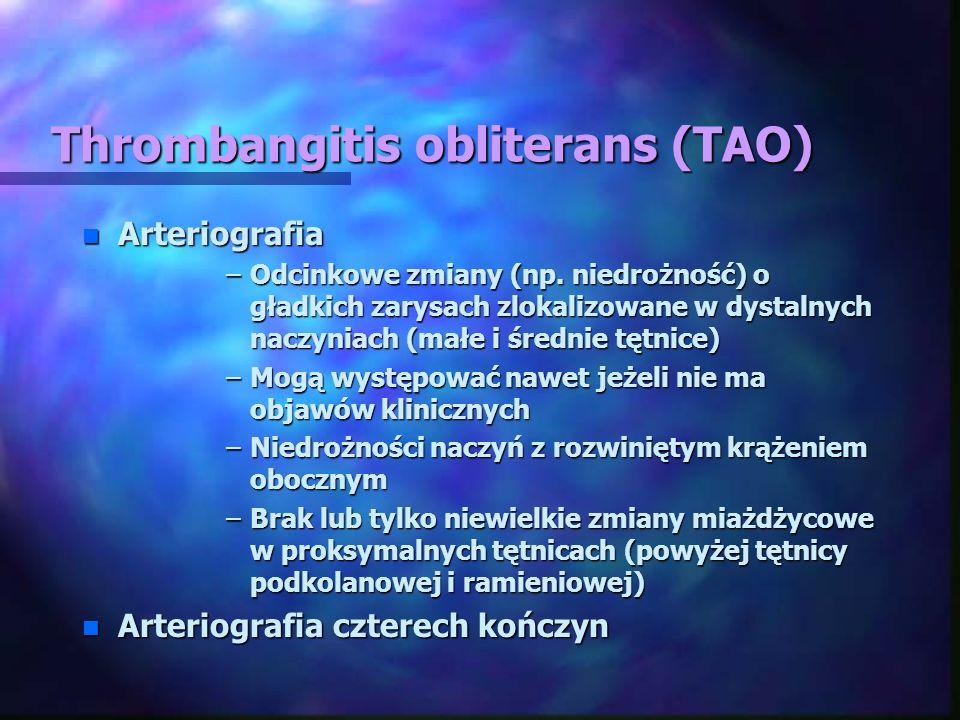 Thrombangitis obliterans (TAO) n Arteriografia –Odcinkowe zmiany (np. niedrożność) o gładkich zarysach zlokalizowane w dystalnych naczyniach (małe i ś