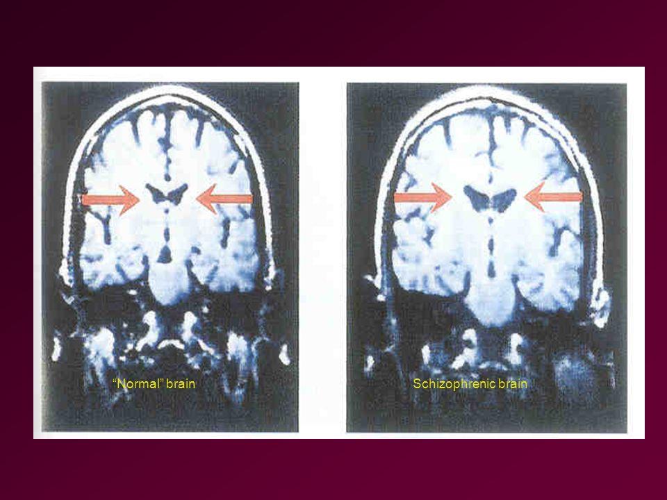 Normal brainSchizophrenic brain