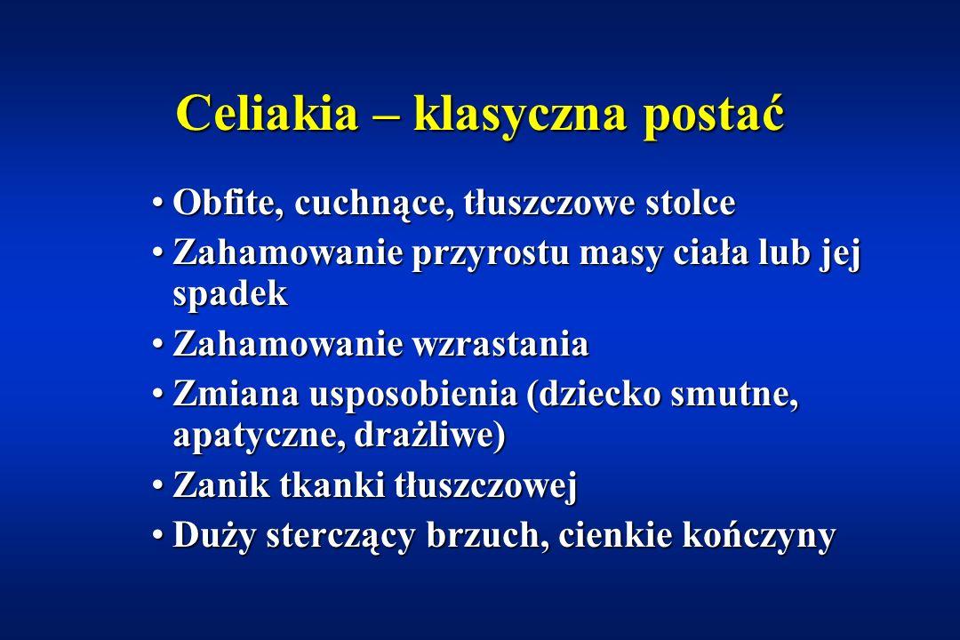 Celiakia – epidemiologia Postać objawowaPostać objawowa 1:250 – 1:1000 Postać niemaPostać niema 1:75 – 1:150 n=101 Catassi et al. 1996 HLA DQ 2/8