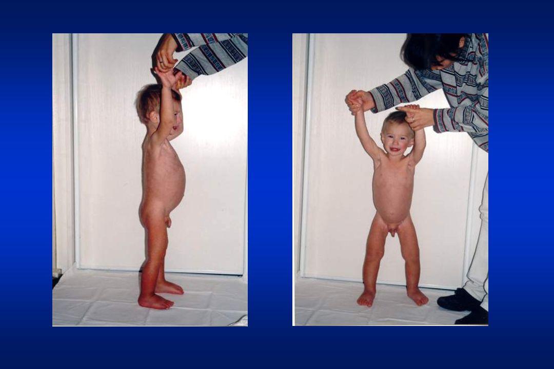 Celiakia – klasyczna postać Obfite, cuchnące, tłuszczowe stolceObfite, cuchnące, tłuszczowe stolce Zahamowanie przyrostu masy ciała lub jej spadekZahamowanie przyrostu masy ciała lub jej spadek Zahamowanie wzrastaniaZahamowanie wzrastania Zmiana usposobienia (dziecko smutne, apatyczne, drażliwe)Zmiana usposobienia (dziecko smutne, apatyczne, drażliwe) Zanik tkanki tłuszczowejZanik tkanki tłuszczowej Duży sterczący brzuch, cienkie kończynyDuży sterczący brzuch, cienkie kończyny