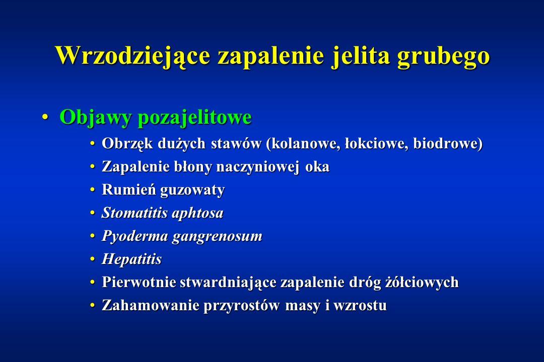 Wrzodziejące zapalenie jelita grubego KlinikaKlinika biegunka (często z krwią)biegunka (często z krwią) kurczowe bóle brzuchakurczowe bóle brzucha stany podgorączkowestany podgorączkowe brak łaknieniabrak łaknienia osłabienieosłabienie zaostrzenia i remisjezaostrzenia i remisje
