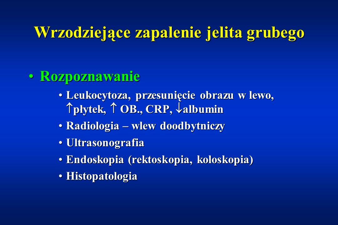 Wrzodziejące zapalenie jelita grubego Objawy pozajelitoweObjawy pozajelitowe Obrzęk dużych stawów (kolanowe, łokciowe, biodrowe)Obrzęk dużych stawów (kolanowe, łokciowe, biodrowe) Zapalenie błony naczyniowej okaZapalenie błony naczyniowej oka Rumień guzowatyRumień guzowaty Stomatitis aphtosaStomatitis aphtosa Pyoderma gangrenosumPyoderma gangrenosum HepatitisHepatitis Pierwotnie stwardniające zapalenie dróg żółciowychPierwotnie stwardniające zapalenie dróg żółciowych Zahamowanie przyrostów masy i wzrostuZahamowanie przyrostów masy i wzrostu