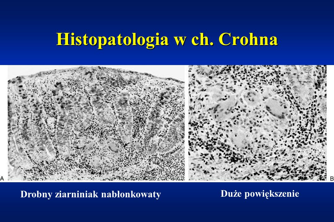 Obraz endoskopowy w ch. Crohna