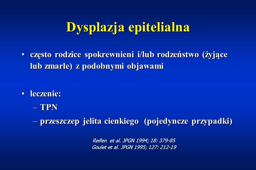 Dysplazja epitelialna (ang: epithelial dysplasia) zaburzenia procesu złuszczania enterocytówzaburzenia procesu złuszczania enterocytów miejscowe nagromadzenie komórek nabłonkowych w wyniku szybkiego napierania enterocytówmiejscowe nagromadzenie komórek nabłonkowych w wyniku szybkiego napierania enterocytów zanik błony śluzowejzanik błony śluzowej przerost kryptprzerost krypt 'kępki' - tufts - tufting enteropathy'kępki' - tufts - tufting enteropathy