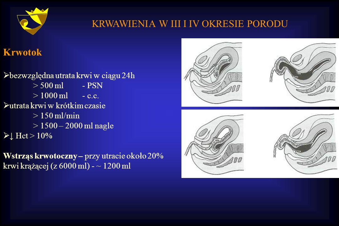 KRWAWIENIA W III I IV OKRESIE PORODU Krwotok  bezwzględna utrata krwi w ciągu 24h > 500 ml - PSN > 1000 ml - c.c.  utrata krwi w krótkim czasie > 15