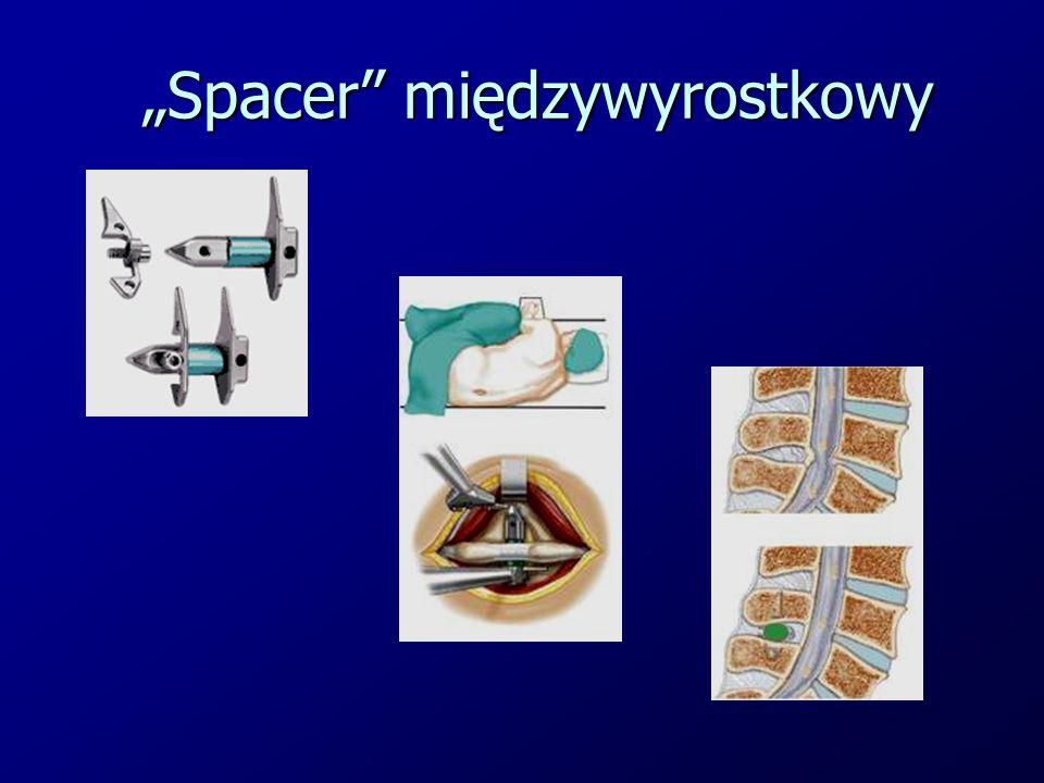 """""""Spacer"""" międzywyrostkowy"""