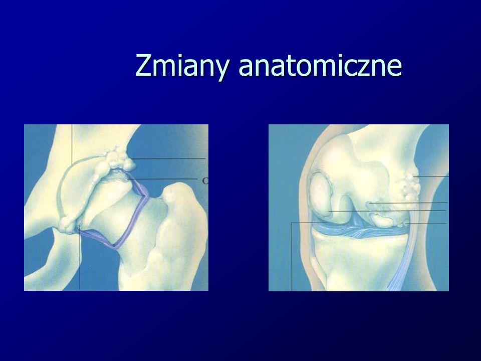 Zmiany anatomiczne