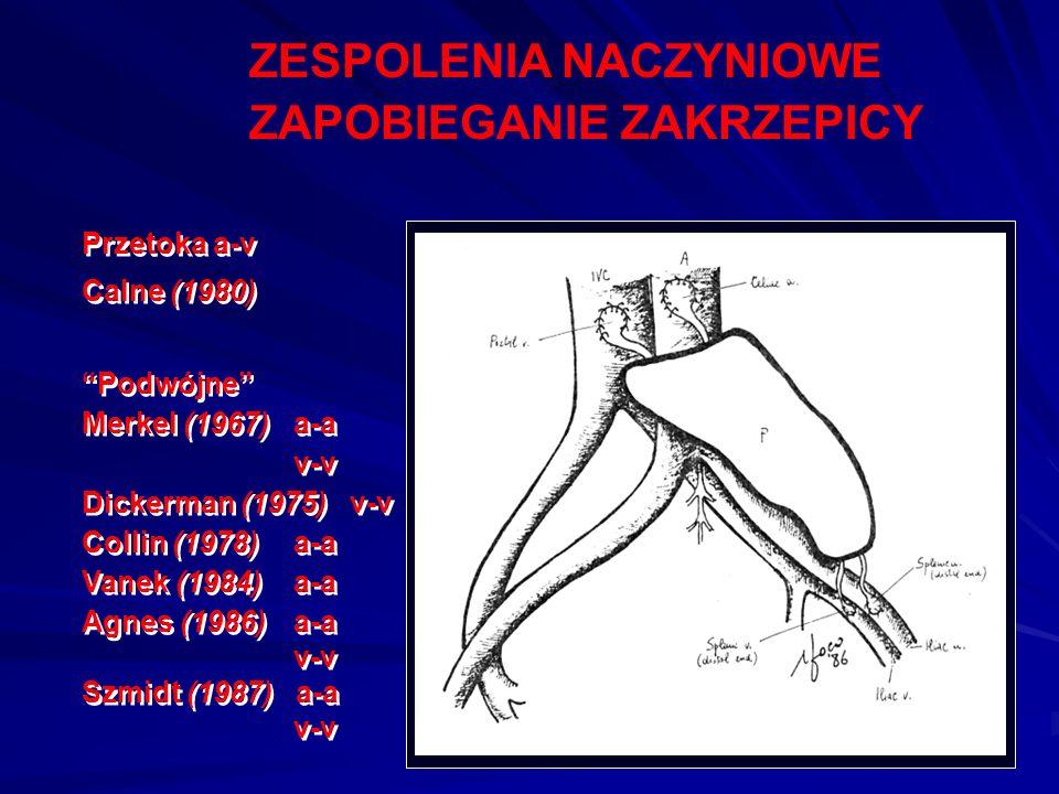 """ZESPOLENIA NACZYNIOWE ZAPOBIEGANIE ZAKRZEPICY Przetoka a-v Calne (1980) """"Podwójne"""" Merkel (1967)a-a v-v Dickerman (1975) v-v Collin (1978)a-a Vanek (1"""