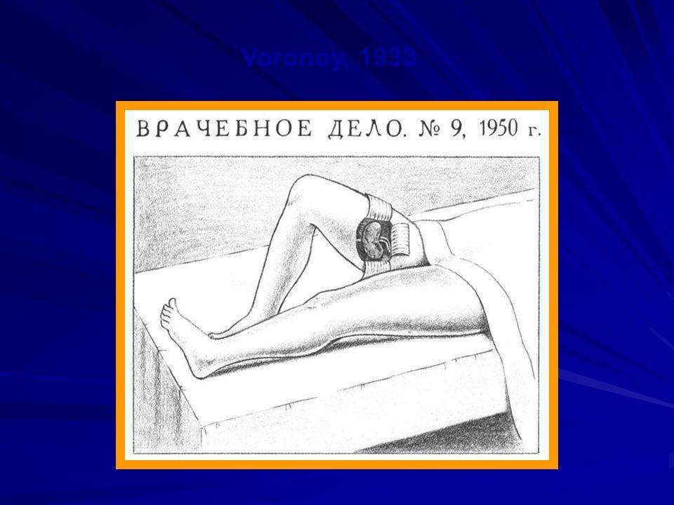 Historia 1933 – Pierwszy allogeniczny przeszczep nerki z zespoleniem do naczyń udowych Jurij Voronoy