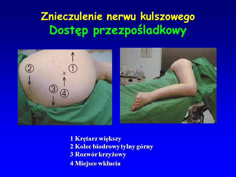 Znieczulenie nerwu kulszowego Dostęp przezpośladkowy 1 Krętarz większy 2 Kolec biodrowy tylny górny 3 Rozwór krzyżowy 4 Miejsce wkłucia