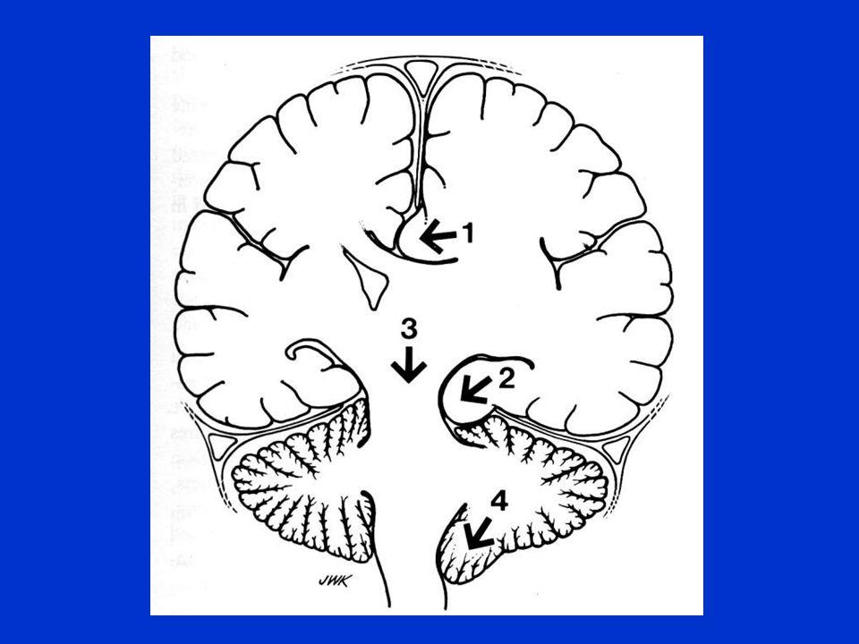 Zasady postępowania w neurochirurgii Wklinowanie - objawy: - utrata przytomności - zwolnienie częstości oddechów - bradykardia - zaburzenia rytmu serca - poszerzenie źrenicy - wzrost ciśnienia tętniczego krwi