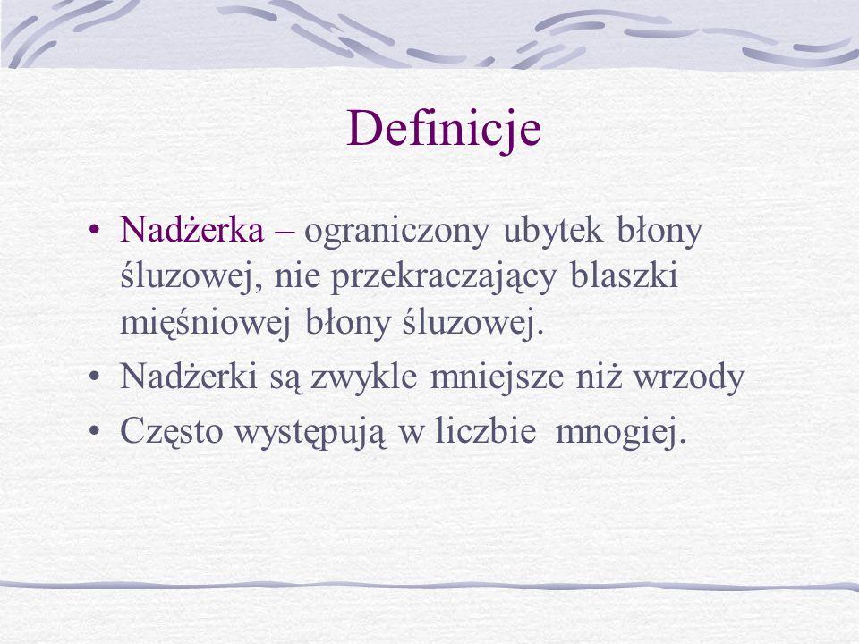 Definicje Nadżerka – ograniczony ubytek błony śluzowej, nie przekraczający blaszki mięśniowej błony śluzowej.