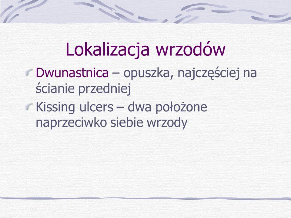 Lokalizacja wrzodów Dwunastnica – opuszka, najczęściej na ścianie przedniej Kissing ulcers – dwa położone naprzeciwko siebie wrzody
