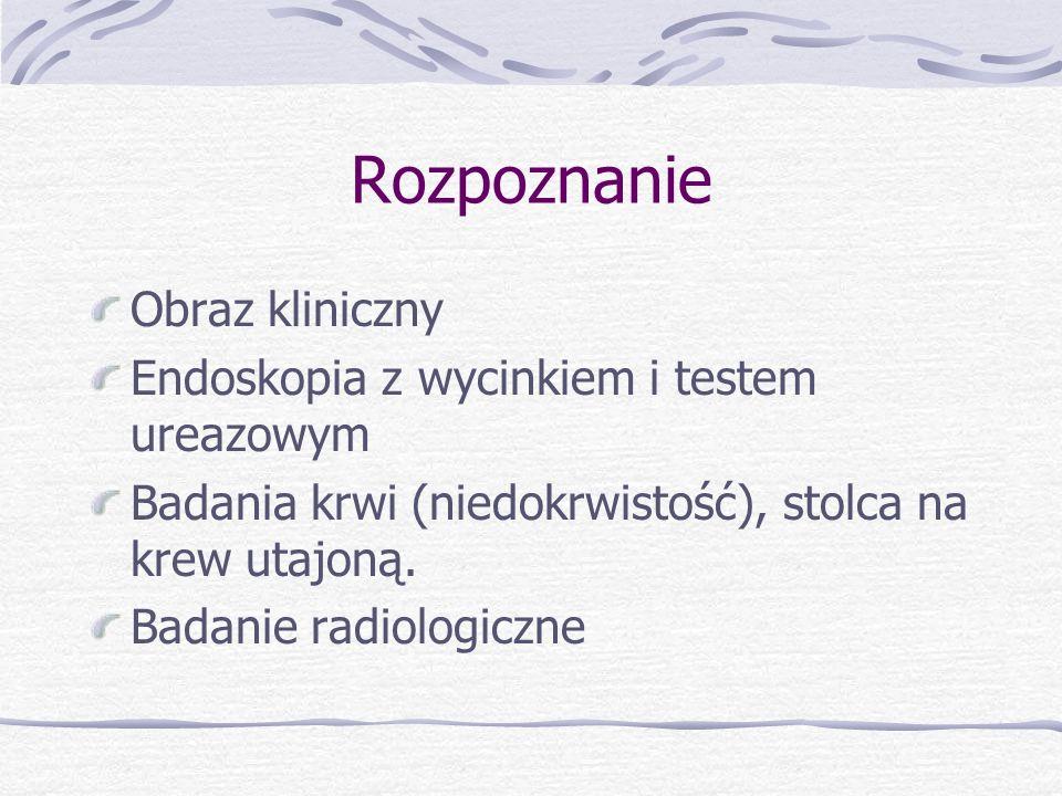 Rozpoznanie Obraz kliniczny Endoskopia z wycinkiem i testem ureazowym Badania krwi (niedokrwistość), stolca na krew utajoną.