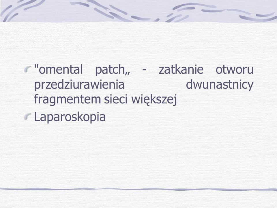"""omental patch"""" - zatkanie otworu przedziurawienia dwunastnicy fragmentem sieci większej Laparoskopia"""