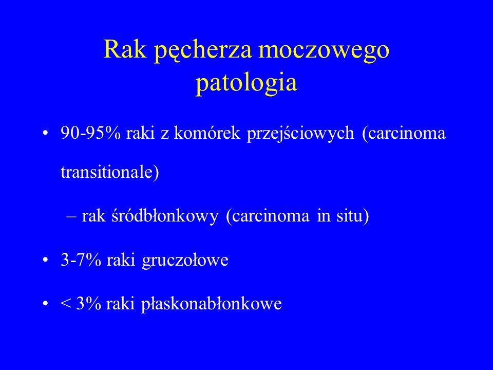 Rak pęcherza moczowego patologia 90-95% raki z komórek przejściowych (carcinoma transitionale) –rak śródbłonkowy (carcinoma in situ) 3-7% raki gruczołowe < 3% raki płaskonabłonkowe