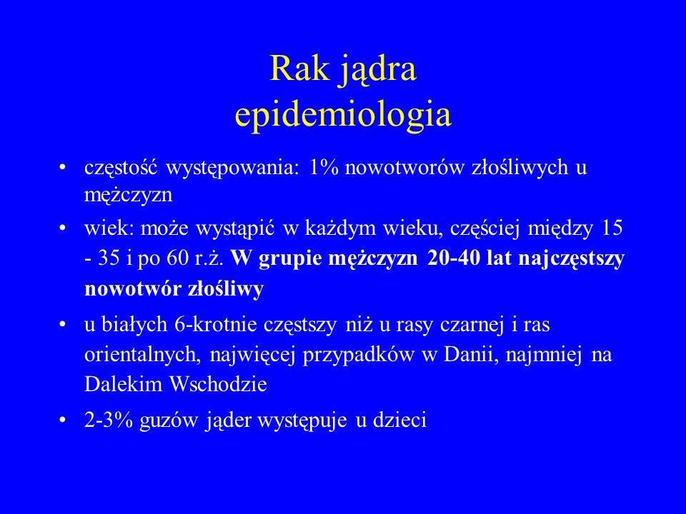 Rak jądra epidemiologia częstość występowania: 1% nowotworów złośliwych u mężczyzn wiek: może wystąpić w każdym wieku, częściej między 15 - 35 i po 60 r.ż.