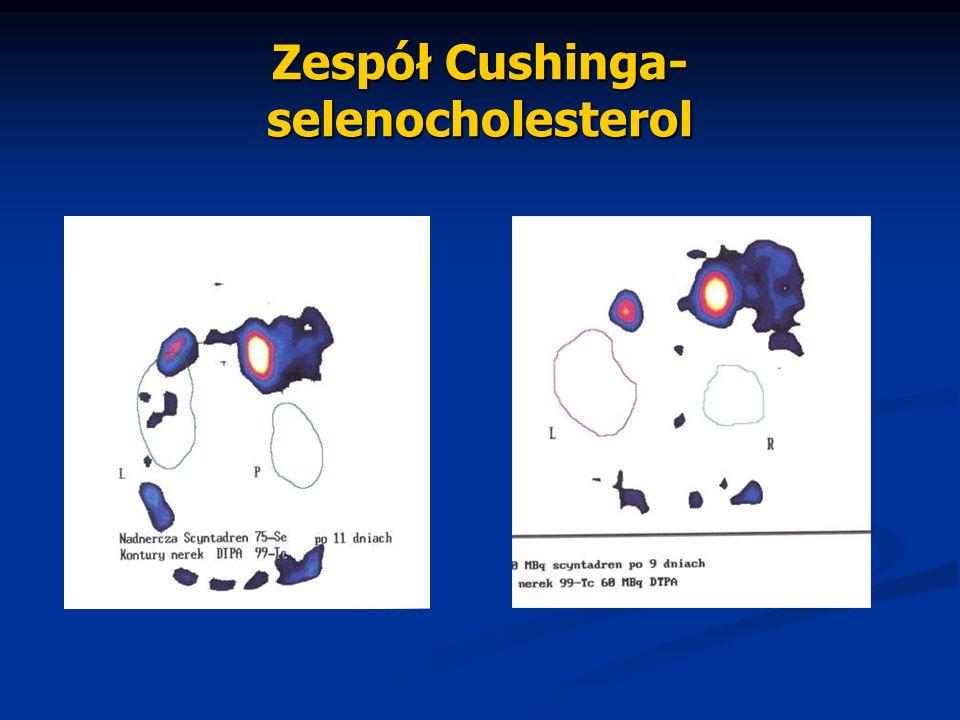 Zespół Cushinga- selenocholesterol