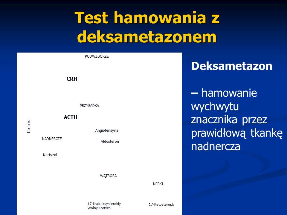 Test hamowania z deksametazonem PODWZGÓRZE CRH ACTH Angiotensyna Aldosteron NADNERCZE PRZYSADKA Kortyzol WĄTROBA NERKI 17-Hydroksysteroidy Wolny Korty