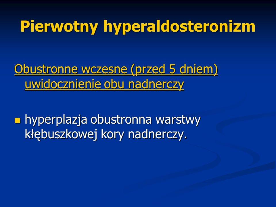 Pierwotny hyperaldosteronizm Obustronne wczesne (przed 5 dniem) uwidocznienie obu nadnerczy hyperplazja obustronna warstwy kłębuszkowej kory nadnerczy
