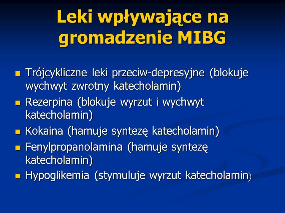 Leki wpływające na gromadzenie MIBG Trójcykliczne leki przeciw-depresyjne (blokuje wychwyt zwrotny katecholamin) Trójcykliczne leki przeciw-depresyjne