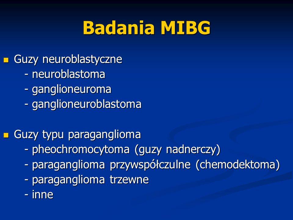 Badania MIBG Guzy neuroblastyczne Guzy neuroblastyczne - neuroblastoma - neuroblastoma - ganglioneuroma - ganglioneuroma - ganglioneuroblastoma - gang
