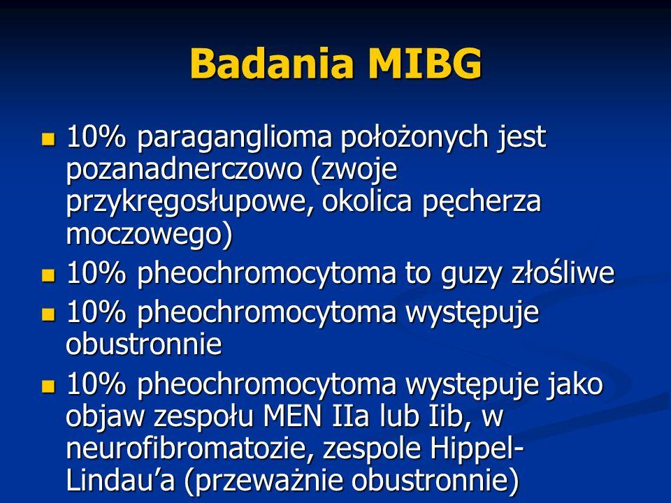 Badania MIBG 10% paraganglioma położonych jest pozanadnerczowo (zwoje przykręgosłupowe, okolica pęcherza moczowego) 10% paraganglioma położonych jest