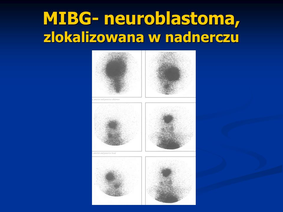 MIBG- neuroblastoma, zlokalizowana w nadnerczu