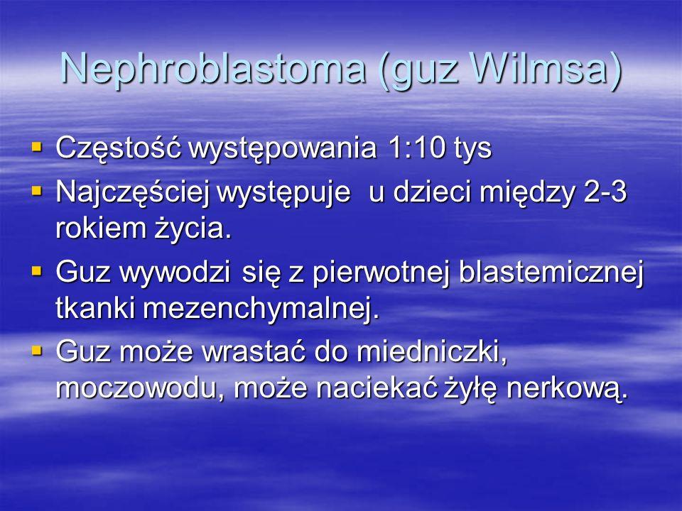 Nephroblastoma (guz Wilmsa)  Częstość występowania 1:10 tys  Najczęściej występuje u dzieci między 2-3 rokiem życia.  Guz wywodzi się z pierwotnej
