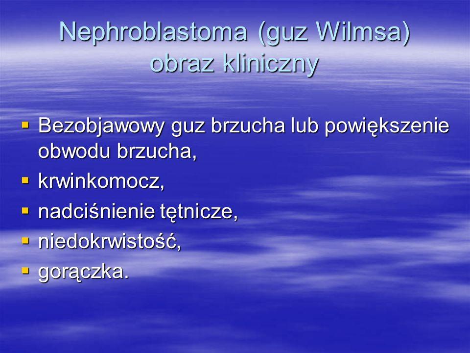 Nephroblastoma (guz Wilmsa) obraz kliniczny  Bezobjawowy guz brzucha lub powiększenie obwodu brzucha,  krwinkomocz,  nadciśnienie tętnicze,  niedo